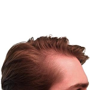 Visible frontal hair loss before Revive hair fibers application