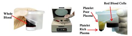 Tulsa Platelet Rich Plasma PRP Prolotherapy Device