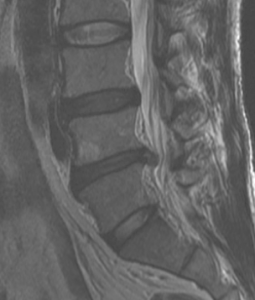 low back disk herniation before prolotherapy