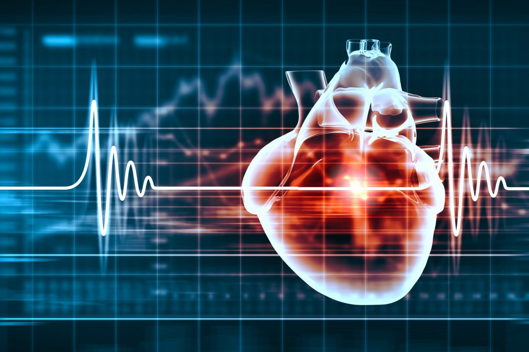 cardiovascular screening program