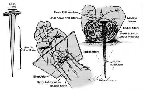 La mort physique de Jesus, etude scientifique medicale / Partie 3:  enclouage des poignets.