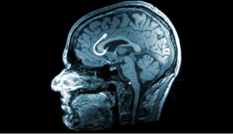 Your Brain on Porn