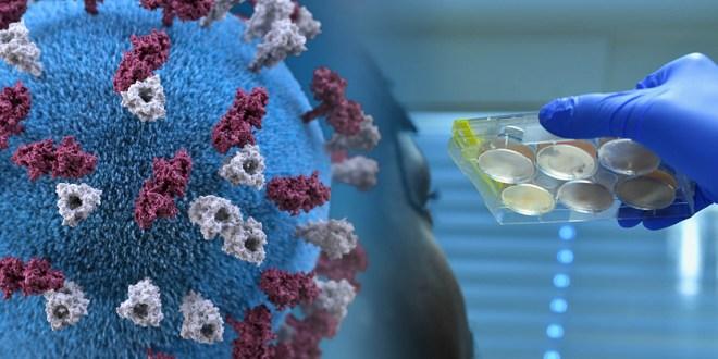 coronavirus de type SARS-CoV-2