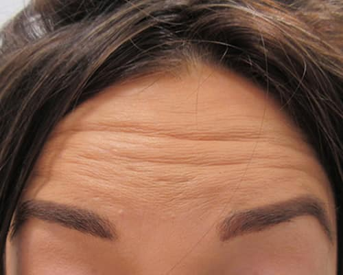 botox before manchester wilmslow cheshire chester london
