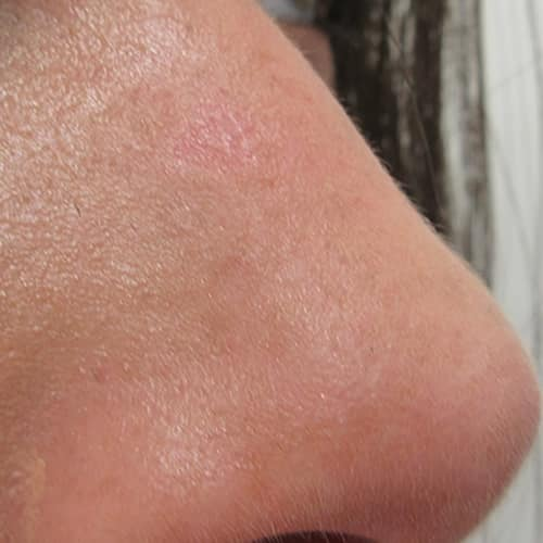laser mole removal after manchester chester london