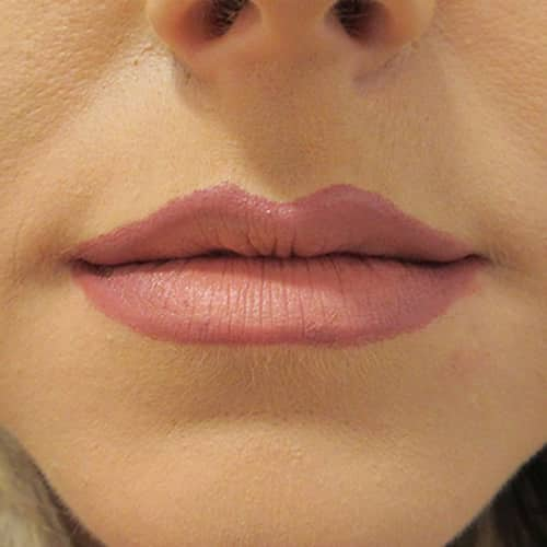 lip fillers wilmslow cheshire chester manchester london