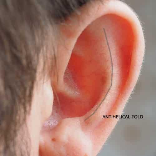 earfold