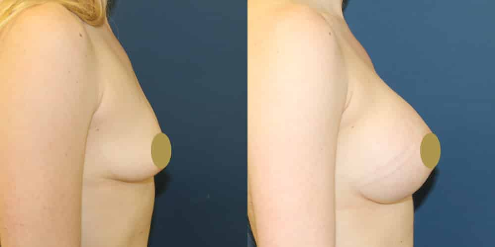 Breast implants cheshire