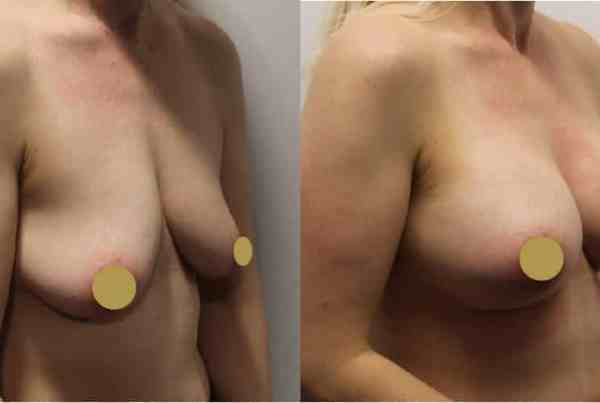 Teardrop Breast Implants 295cc