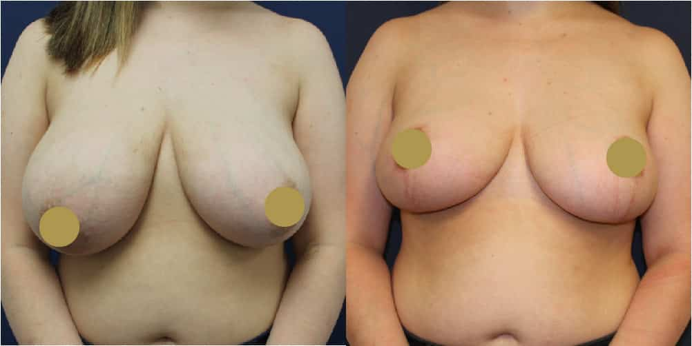 Breast Reduction Manchester