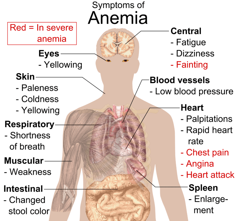 Anemia Is There A Connection To Blood Types Rhesus Negative