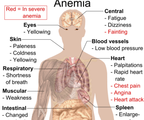 Anemia: Is there a connection to blood types?