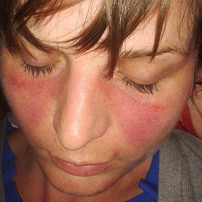 Is having RH negative blood linked to autoimmune disease? Lupus