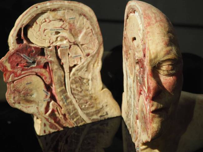 Amsterdam Body Worlds 2