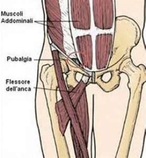 """La """"pubalgia"""" o sindrome retto adduttoria è una patologia che si manifesta  con dolori localizzati a livello della sinfisi pubica e che interessa in ... 74f26c19ff86"""