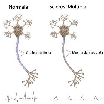 staff_sclerosi_multipla