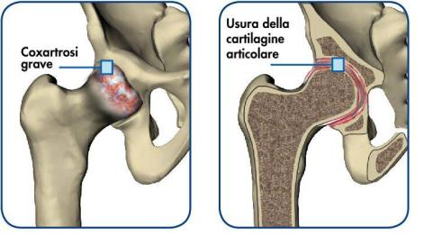 hip-anatomy_it2