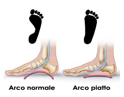 Piede-piatto-visita-ortopedica-studio-medico-roma