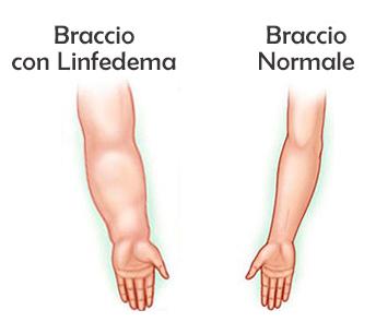 linfedema-arti-superiori-braccia