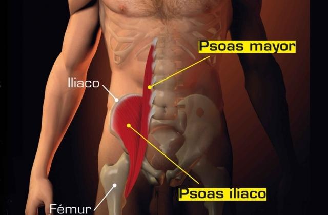 Sindrome dell  ileopsoas  1a15f34b12ff