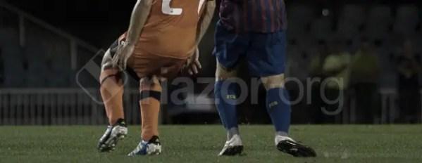 piernas_recurso_barcelona