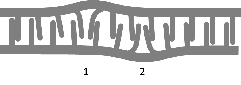 zipper_defects-apart