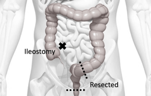 Ultra-low Anterior Resection
