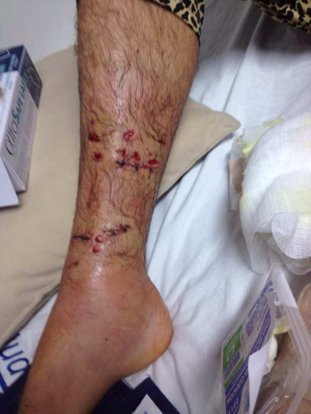 Just one of the injuries suffered by surfer Brian Rea from his crocodile attack