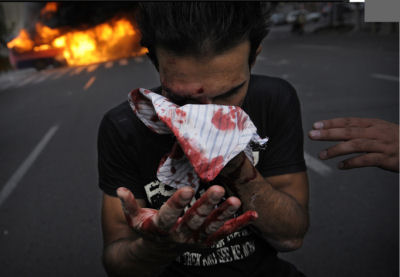 Wounded Moussavi supporter during Teheran demonstrations (Olivier Laban-mattei-AFP/Getty)