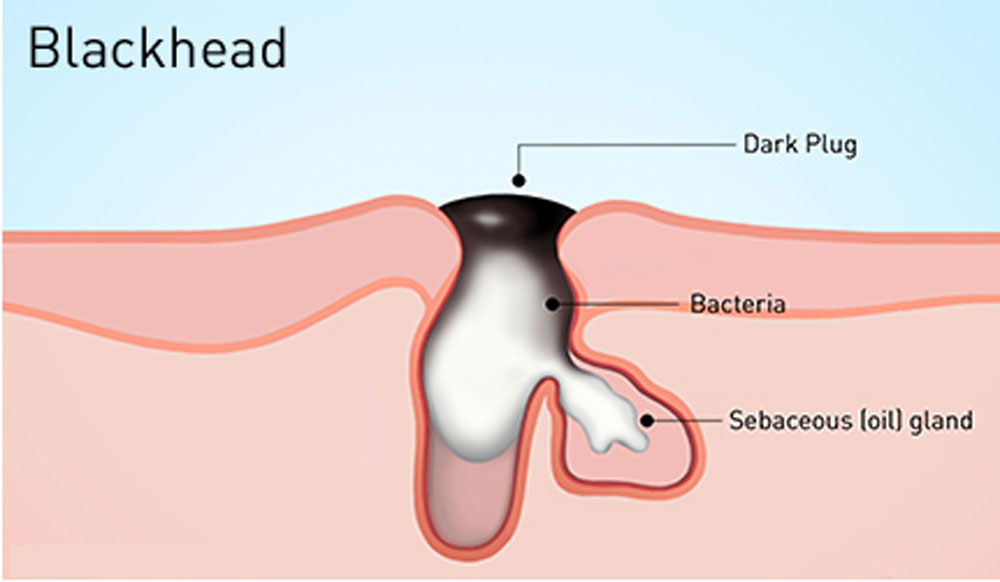 「what are blackheads」の画像検索結果