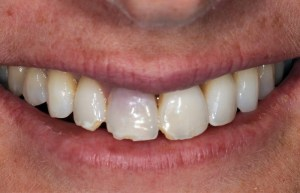 Chipped Tooth Problem