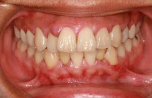 Gum Disease Problem