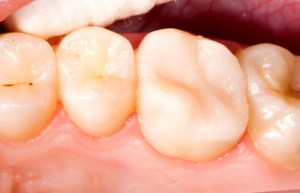 Root Canal Solution