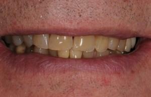 Teeth Discoloration Problem