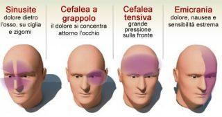 4 tipi di mal di testa