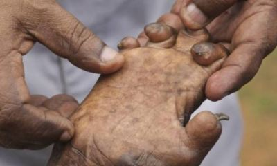 103 cases of leprosy recorded in Plateau in 2018 ---Commissioner