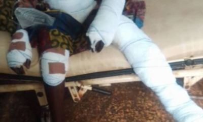 Traders throw 10-year-old boy into fire for allegedly stealing rice in Ebonyi