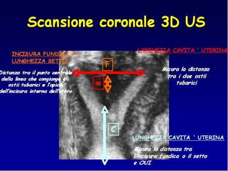 Criteri ecografici per la diagnosi di utero setto