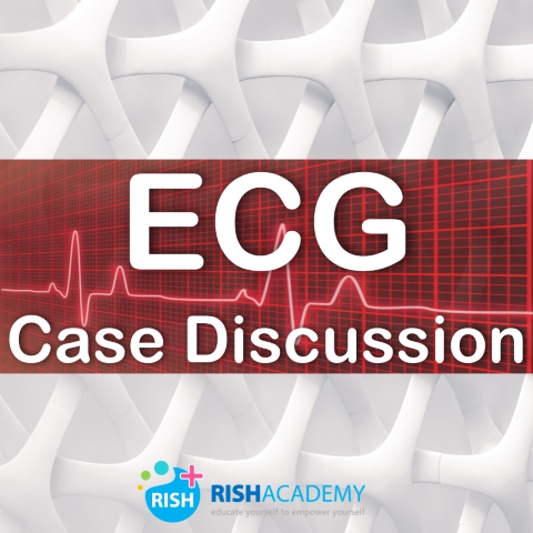 ECG Case Discussion wwww.rishacademy.com