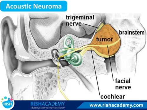 acoustic neuroma www.rishacademy.com