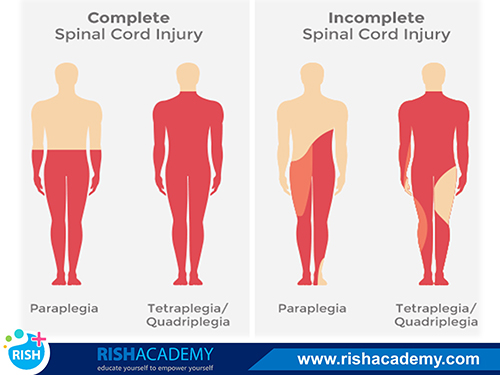 paralysis rishacademy.com