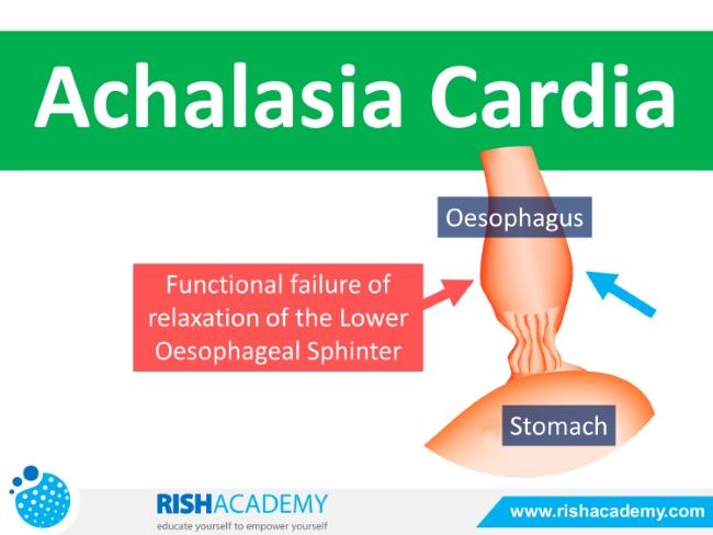 Achalasia Cardia Slideplayer (1)