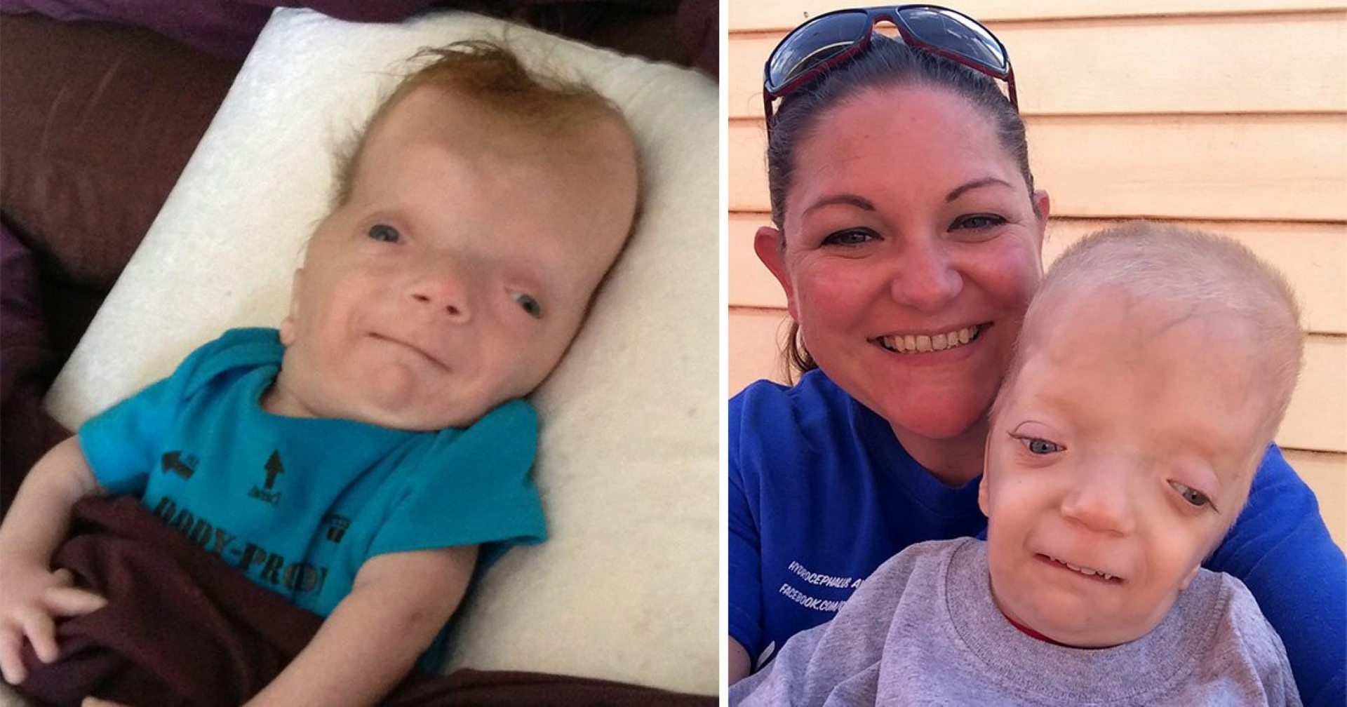 Graysons Syndrome Grayson Wilbrandt Corneal Dystrophy