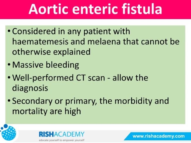 Upper Gastrointestinal Bleeding rish academy (23)