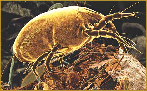 Image Result For Dust Mite Allergy
