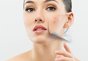River City Cosmetic Medical Clinic Dermal Fillers, Lip