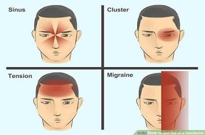 jenis-jenis sakit kepala