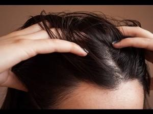 وصفات بسيطة للقضاء نهائيا على مشكل قشرة الرأس