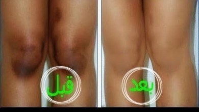 Photo of تبييض المنطقة الحساسه و كل الجسم في اقل من اسبوع