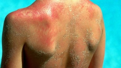 Photo of 5 علاجات طبيعية لحروق الشمس